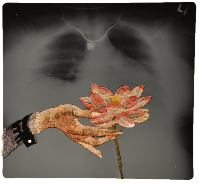 Playfully Embroidered X-Ray Film by Matthew Cox