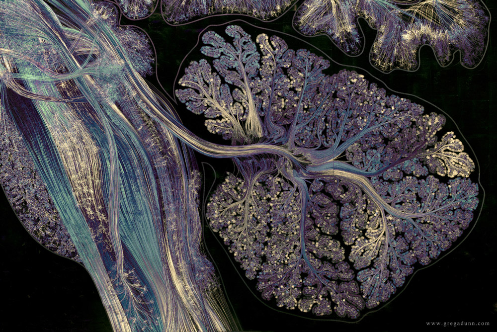 Self Reflected (detail), 22K gilded microetching, 96″ X 130″, 2014-2016, Greg Dunn and Brian Edwards. The brainstem and cerebellum, regions that control basic body and motor functions. (photo by Greg Dunn and Will Drinker)